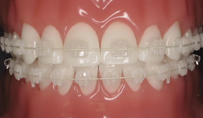 Clarity Advanced Ceramic Brackets L Sean Mullins